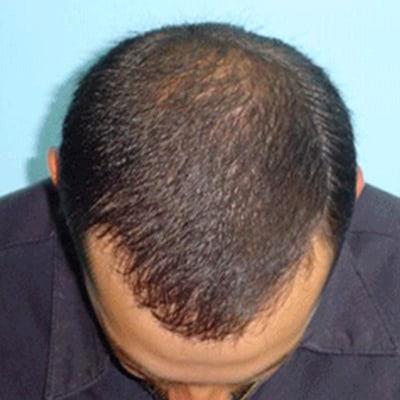 Img-Implante-capilar-1-2