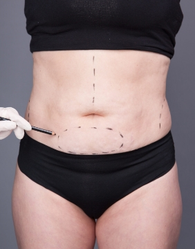 Img-Srv-Abdominoplastia