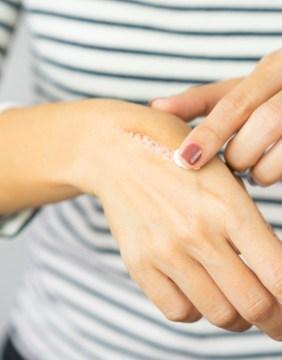 Img-Srv-Tratamiento-Cicatrices