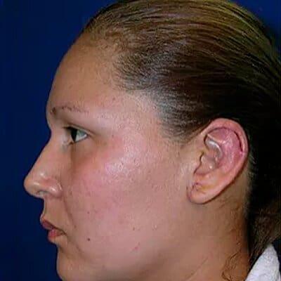 Img-cirugia-de-orejas-2-1