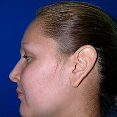 Img-cirugia-de-orejas-2-2