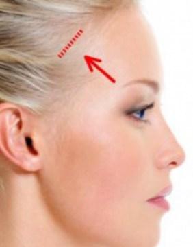 Img-srv-Lifting-Facial